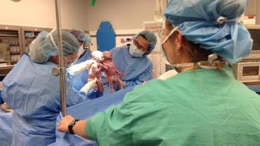 Cum arată acum gemenele care s-au născut ținându-se de mână. Primele lor imagini, virale pe Internet