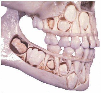 Какие зубы у ребенка меняются 5