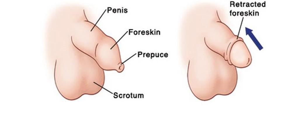 Negii genitali - cum ii recunosti, cum ii tratezi