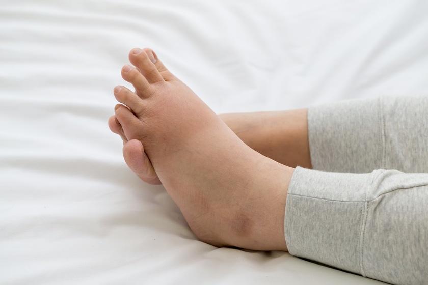 Cum să întăriți picioarele cu vene varicoase