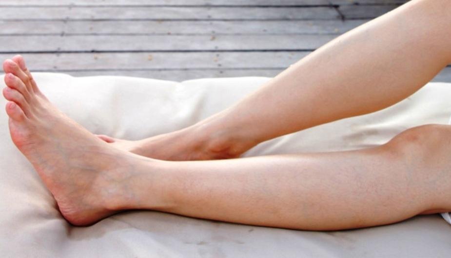 rularea picioarelor în varicoză