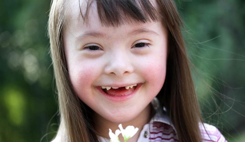 Sindromul Down: Simptome si diagnosticare pentru trisomia 21 | Bioclinica